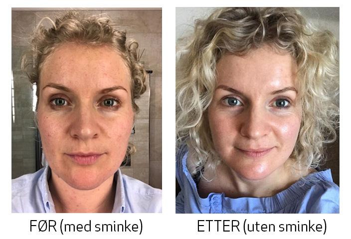 koreansk-hudpleie-før-og-etter-skinsecret